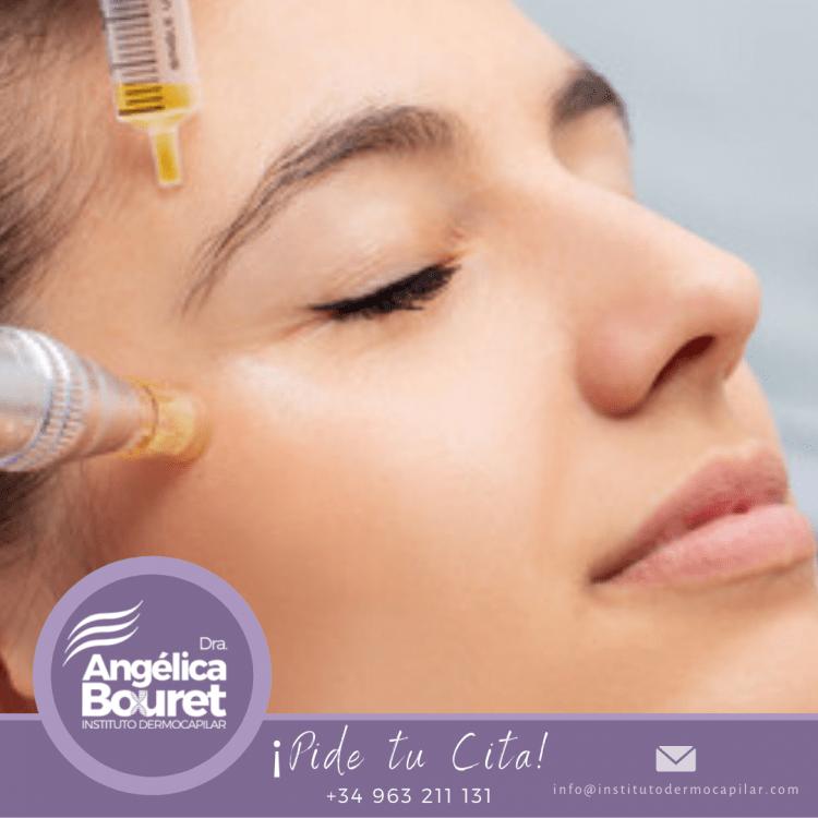 3 sesiones de mesoterapia facial + vitaminas - Instituto Dermocapilar