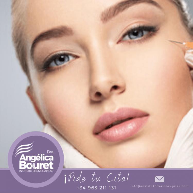 Botox completo - Instituto Dermocapilar