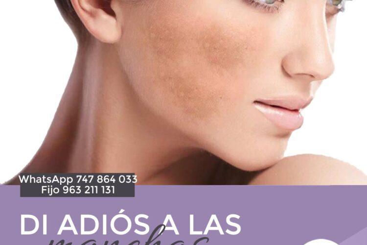 Tratamiento melasma facial en valencia