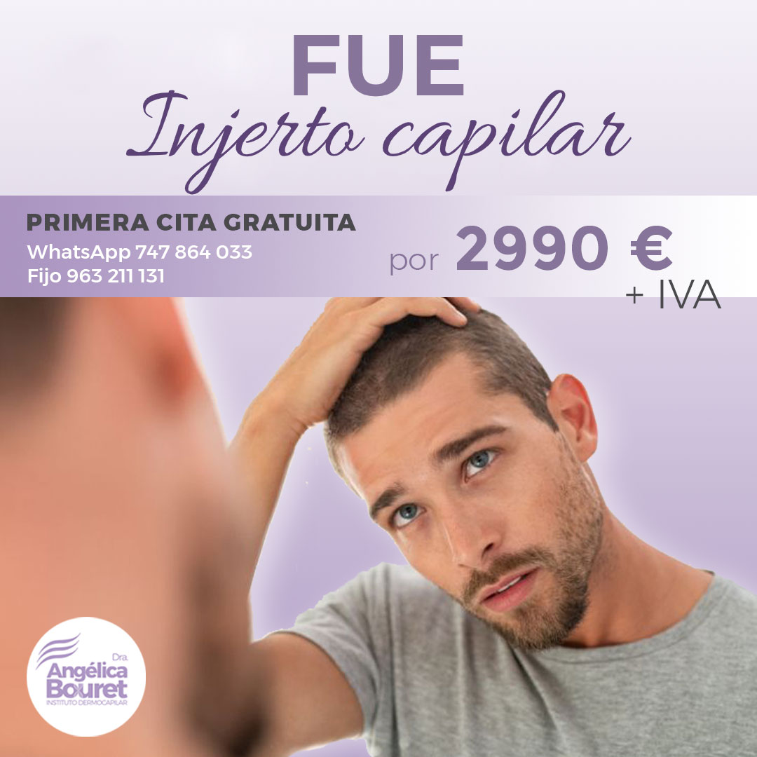 FUE INJERTO CAPILAR - Instituto Dermocapilar