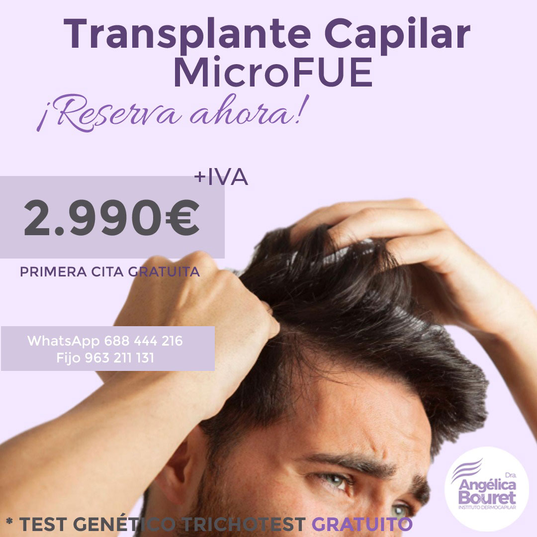 MICROFUE INJERTO CAPILAR - Instituto Dermocapilar