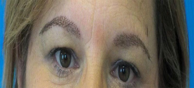 Trasplante cejas - Instituto Dermocapilar