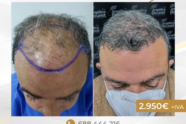 En Instituto Dermocapilar la Doctora Dermatóloga Bouret ofrece el trasplante capilar por 2.950€+IVA