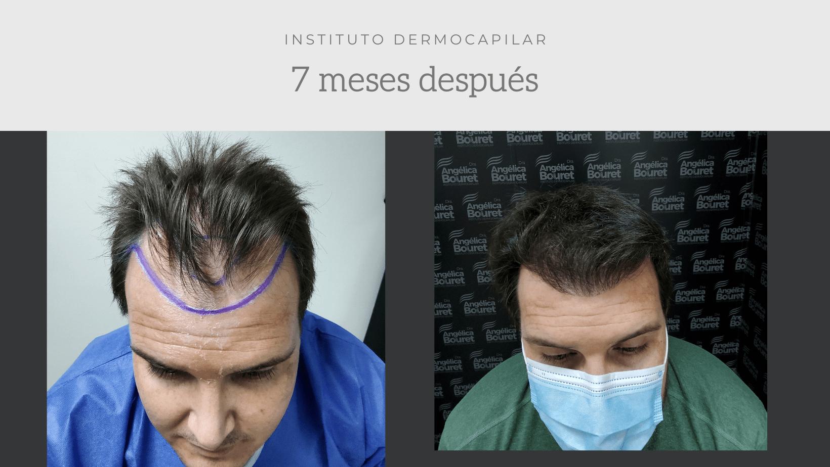 Resultados 7 meses post trasplante capilar