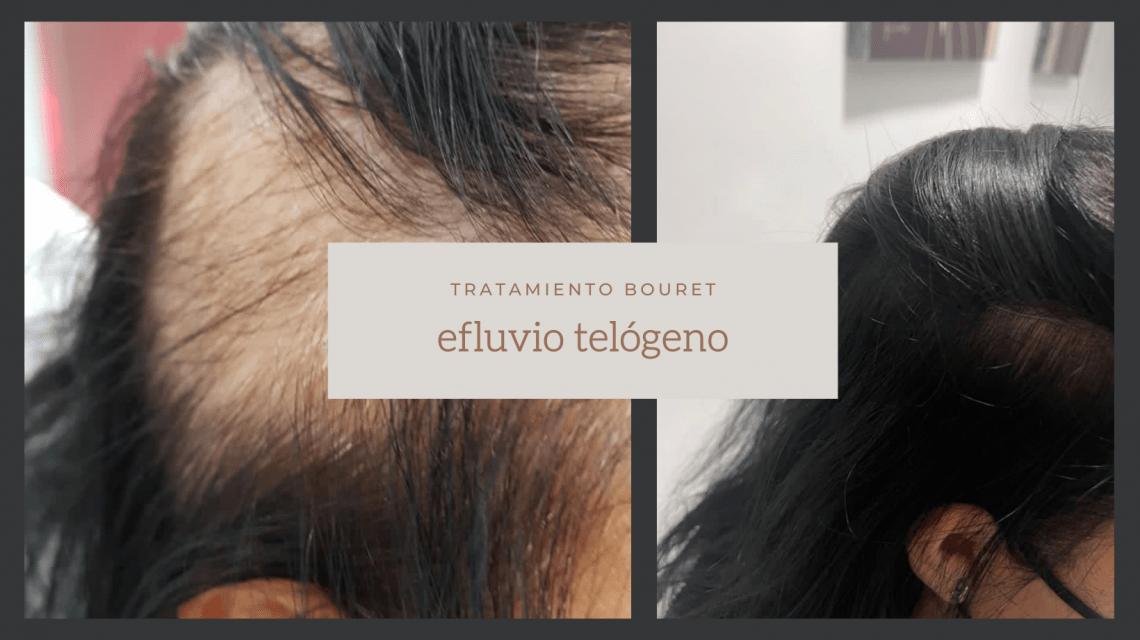 Efluvio telógeno la enfermedad que se diagnostica tras el Covid-19